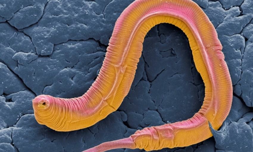 worms programmed to die at early age